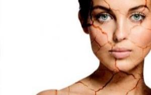 tips mencegah kulit kering