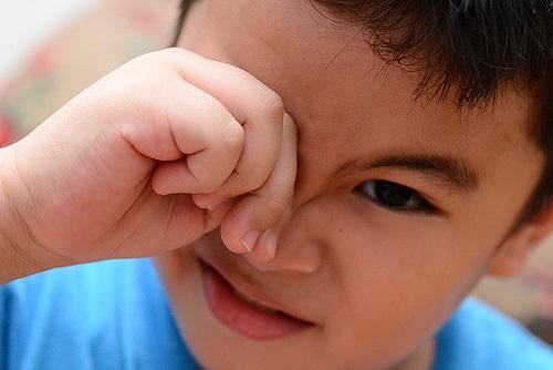 tips mengatasi belekan pada anak